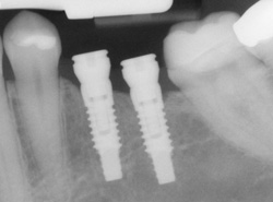 X-ray of an implant in position